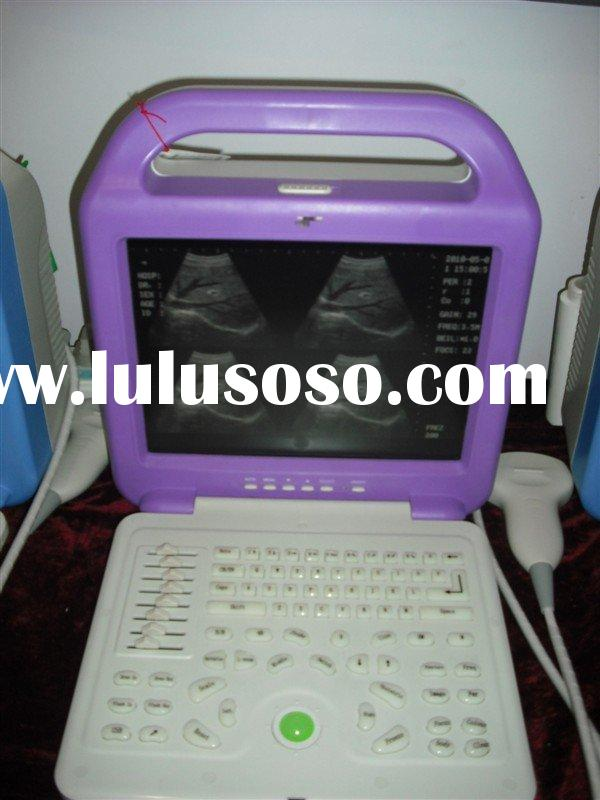 Digital Laptop Ultrasound Scanner( CE ) for Philippines