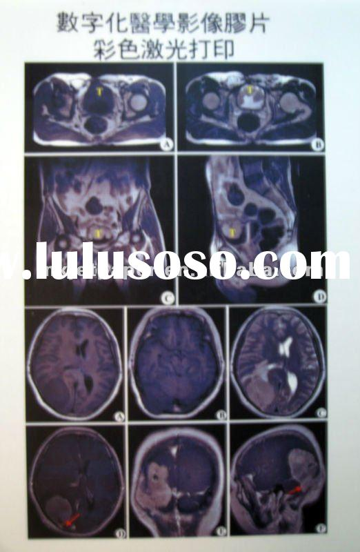 medical X-ray laser printing blue film