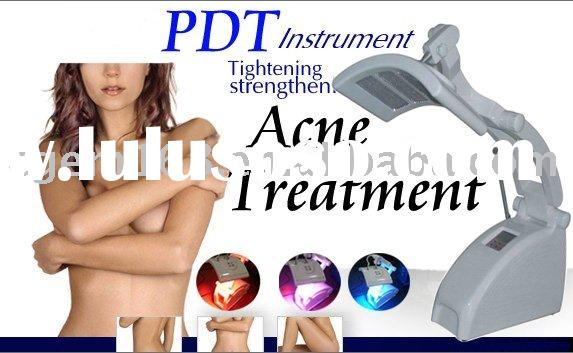 photodynamic therapy (PDT) treatment for acne rosacea skin