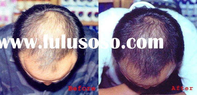 Baldness Treatment Hair Lotion/GMP Manufactory/100% Herbal Hair Regrowth Cream/Top Hair Regrowth Pro