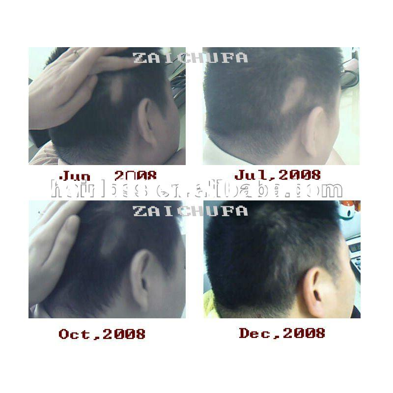 Hair care product, Best Price, Quality Guaranteed,Best hair regrowth treatment product-zaichufa Pila