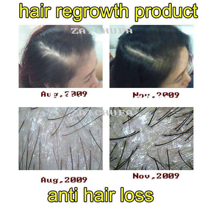 hair regrowth products,anti hair loss and hair growth Spray (secret formula, 100% Herbal, best effec