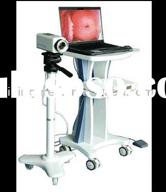 Digital Video Electronic Colposcope with CCD Digital Camera System