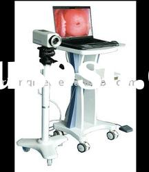 Medical Digital Video Electronic Colposcope with CCD Digital Camera System