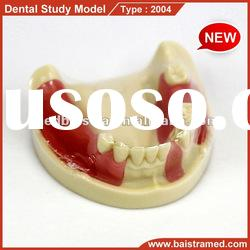 dental implant practice model